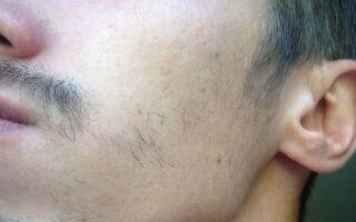 Почему не растет борода на щеках и что делать