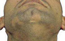 Алопеция мужской бороды: симптомы, причины, как лечить