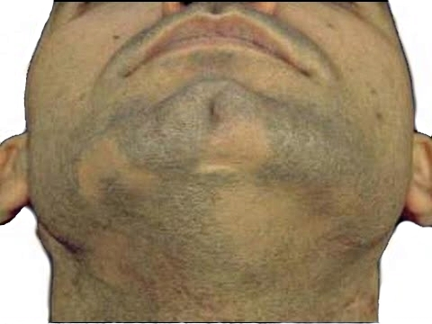 Алопеция бороды у мужчин причины