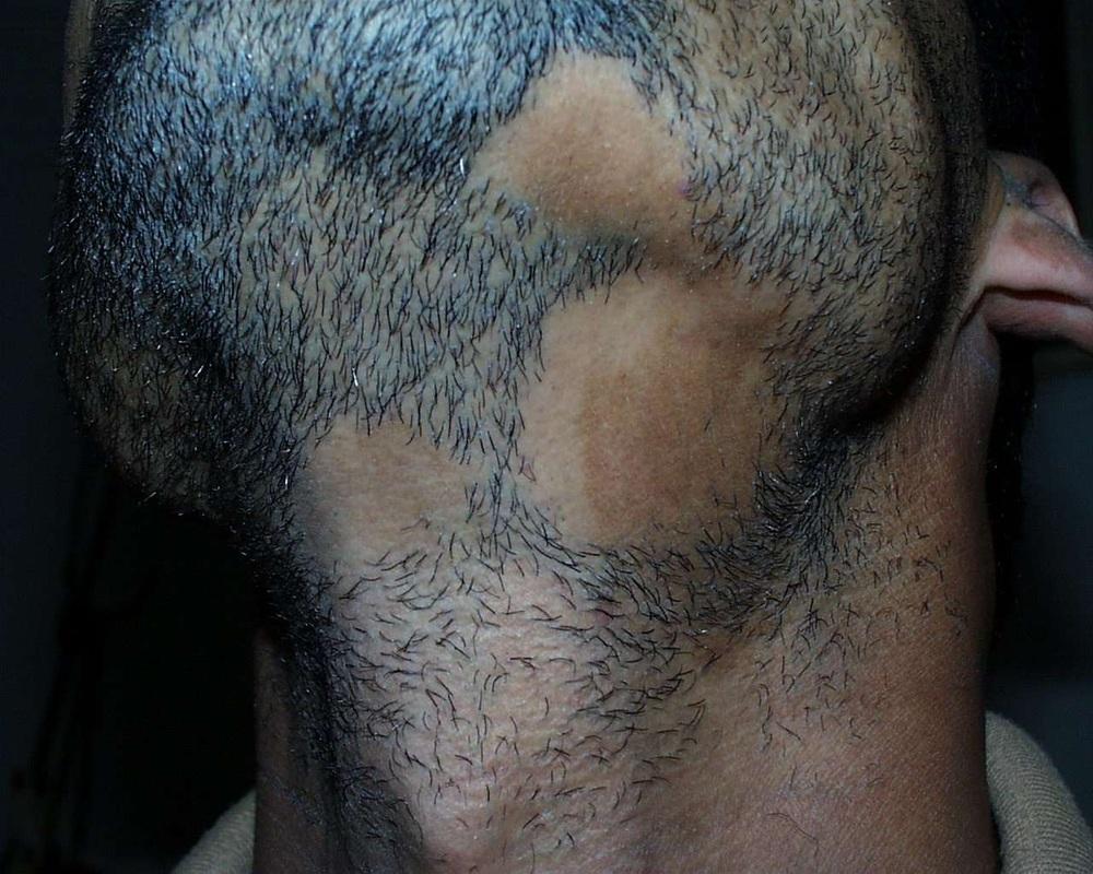 Потеря волос при алопеции бороды