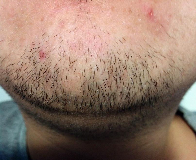 Шелушение кожи на бороде