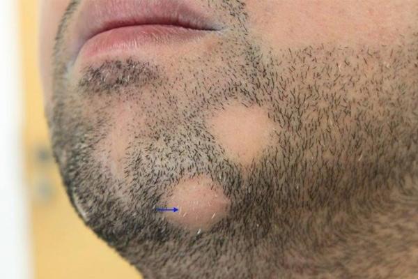 выпадение волос на бороде