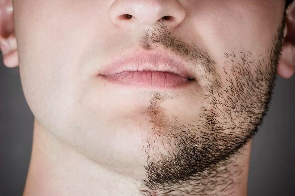 Как ускорить рост бороды в домашних условиях