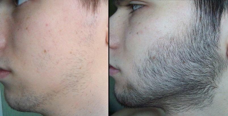 Рост бороды, до и после