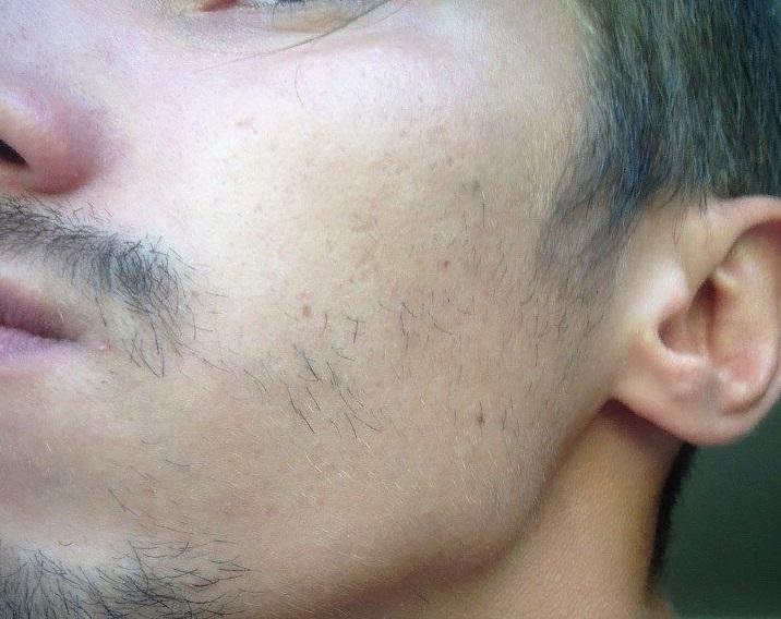 Пример отсутствия бороды на щеках