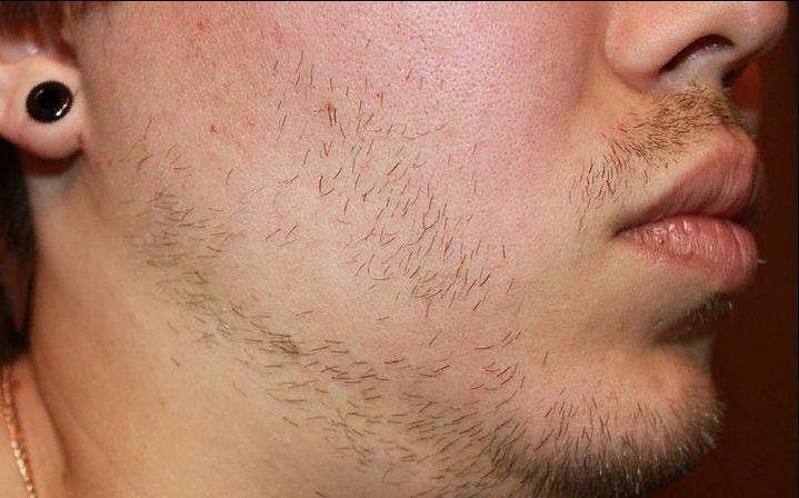 Неравномерный рост щетины на лице