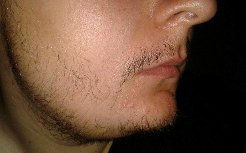 Неравномерный рост бороды на щеках