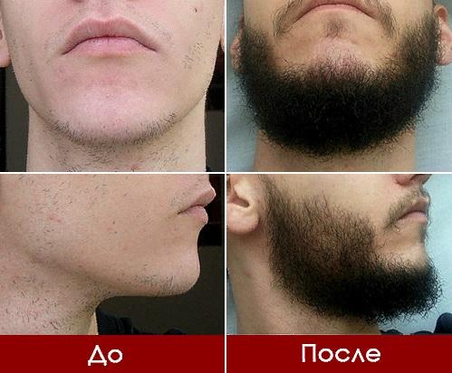 Эффект от применения средств для роста волос на лице