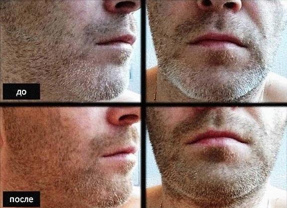Фото бороды до и после применения касторового масла для роста бороды