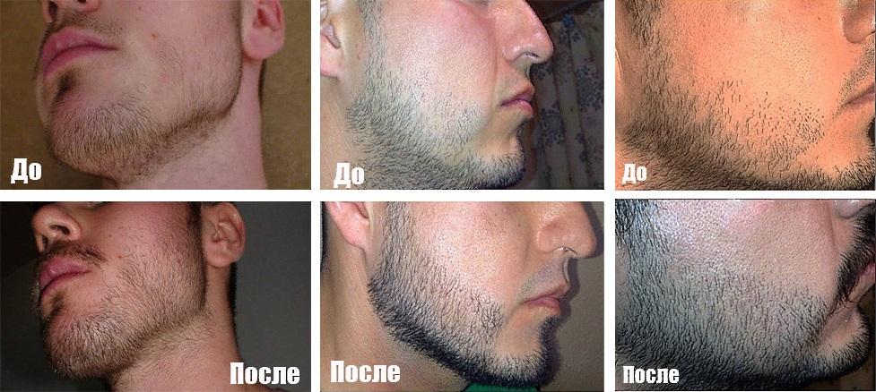 Фото бороды до и после применения касторового масла