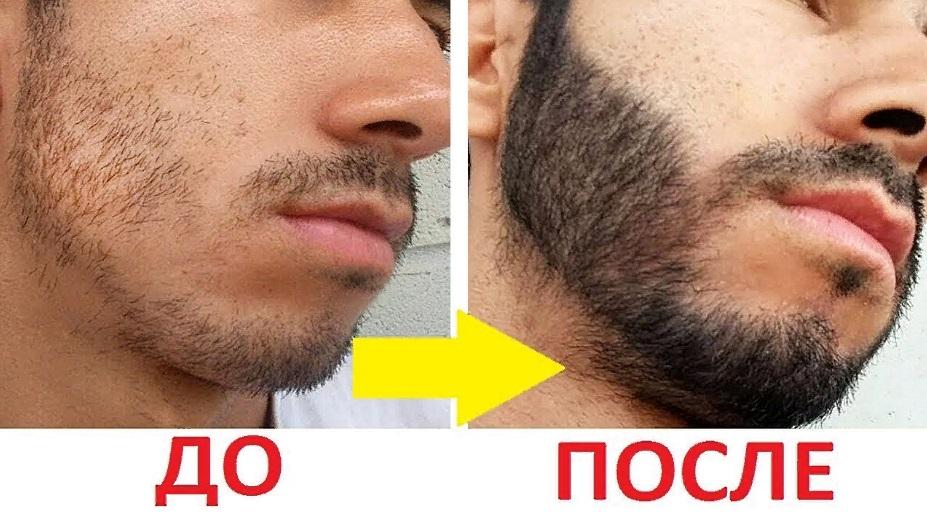 Эффект от применения мази для бороды