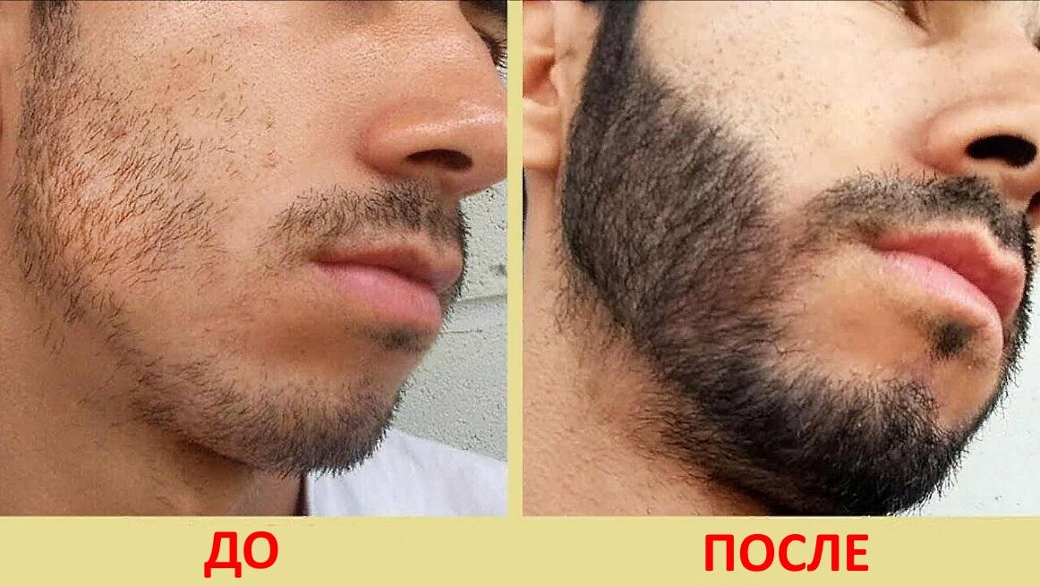 До и после применения Генеролона